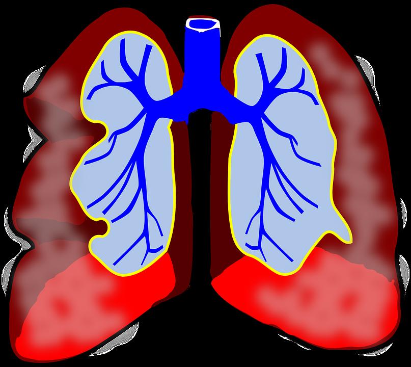 astma a plíce